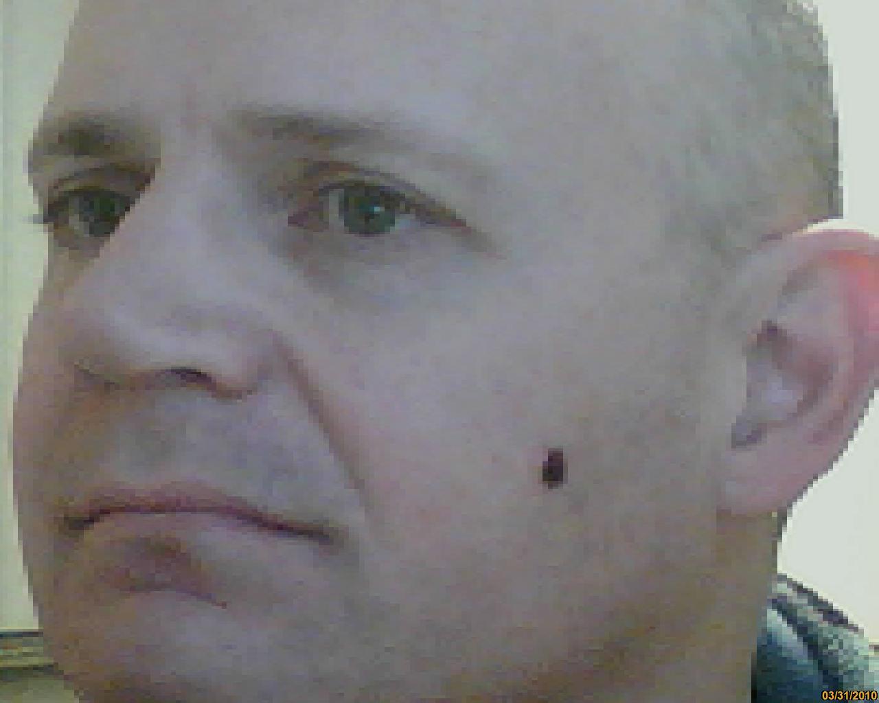 black holes on face - photo #4